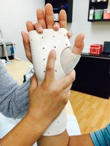 custom orthosis for an extensor tendon repair