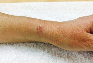 Thumb pain - 2 weeks after De Quervain's release
