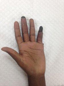 Frost bitten fingers in Miami