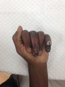 Frost bitten fingers