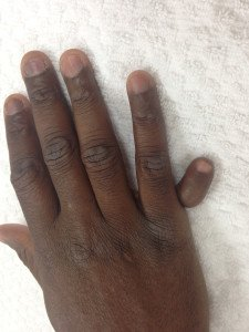 polydactyly - 6th finger