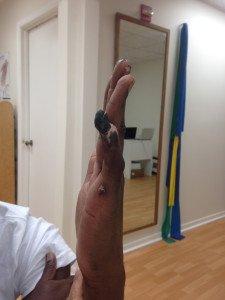Stiff fingers after a frost bite burn