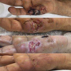 Hand Care Miami