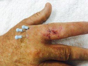 Miami hand care