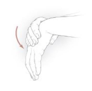 hand therapy miami